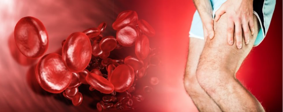 PRP (Platelet Rich Plasma) Therapy